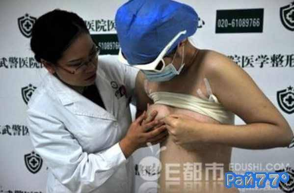Китаец увеличивший себе грудь спустя два месяца по требованию родственников удалил имплантанты