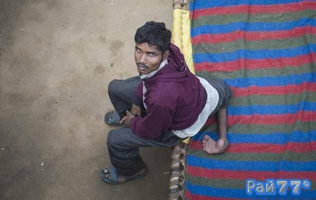 Арун Кумар с рождения имеет четыре ноги