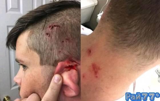 Эндрю Вударду потребовалась помощь медиков после драки с кошкой