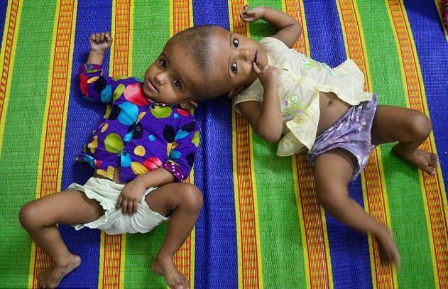 В Бангладеш попытаются разделить сросшихся головами близнецов. (Видео)