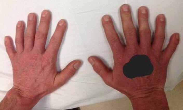 В Британии прогрессирует полидактилия, каждый 500-ый ребёнок рождается с шестью пальцами.