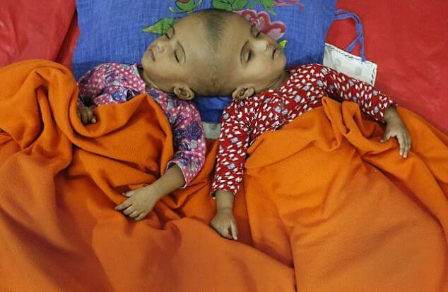 После операции зита и гита три года проходили курс лечения и реабилитации в москве, а затем вернулись к себе на родину.